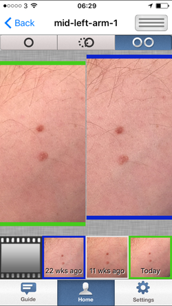 Mole Monitor image comparison